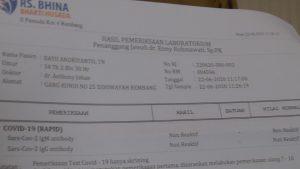 Hasil rapid test Wakil Bupati, Bayu Andriyanto non reaktif Covid-19.