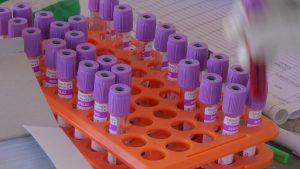 Detail sample darah yang diambil oleh petugas medis.